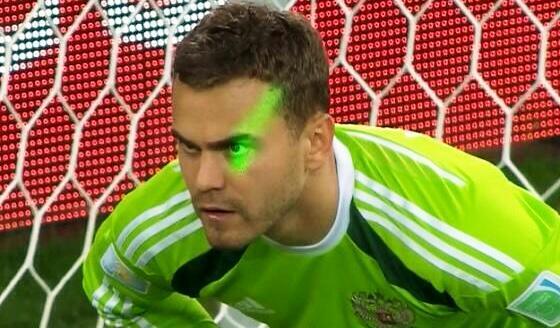Le gardien russe aveuglé au laser lors du match contre l'Algérie (DR)
