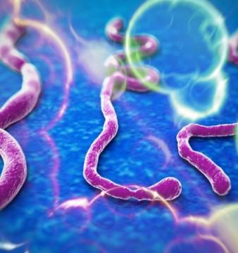 ebola une